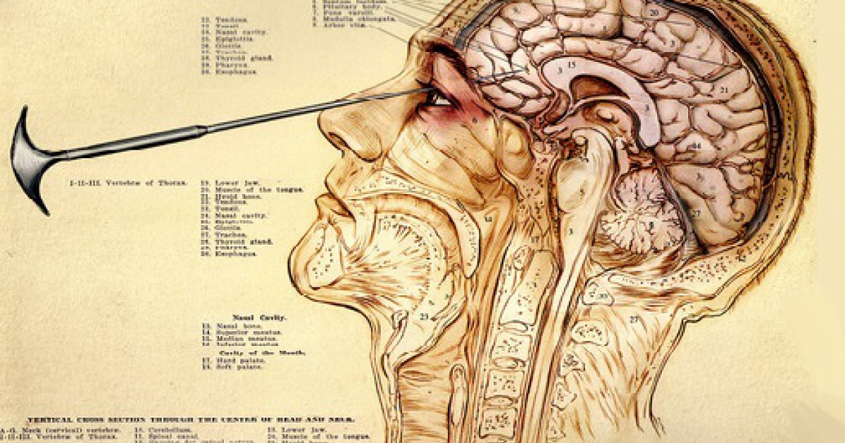 What is a lobotomy and what was it done?
